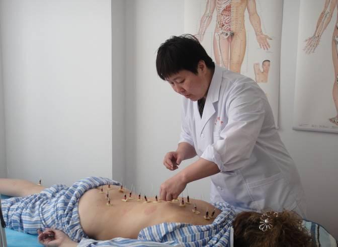 Иглоукалывание китайские врачи отзывы